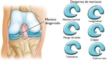 Meniscopatía - desgarro de meniscos