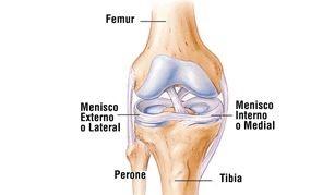 Meniscopatía, lesión de la rodilla